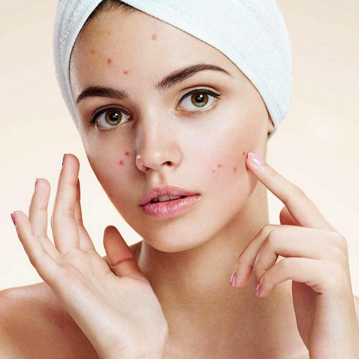 чистка лица beauty_skin_romavia instagram 2